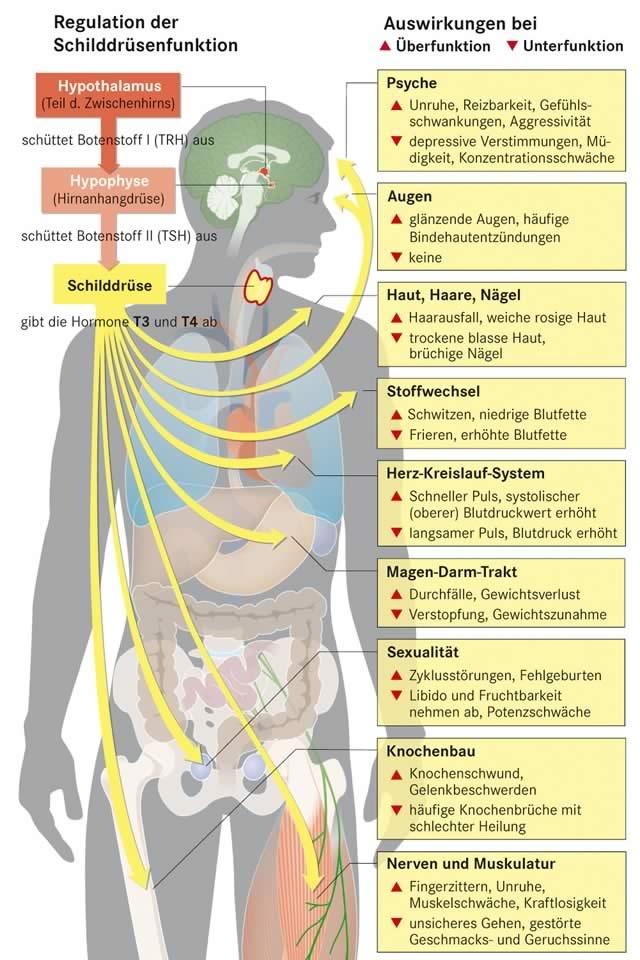 Farbige Grafik mit exakten Werten einer Schilddrüsenunterfunktion und Schilddrüsenüberfunktion